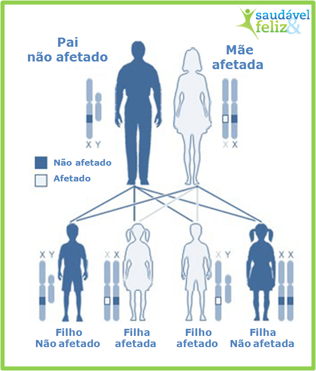 sindrome-do-x-fragil