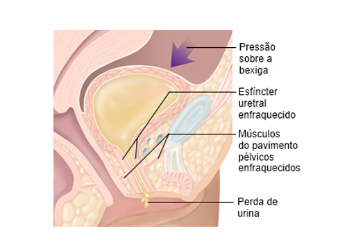 menopausa-incontinencia