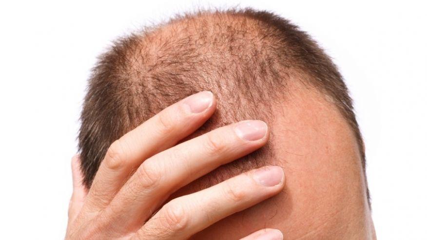queda-de-cabelo-homem