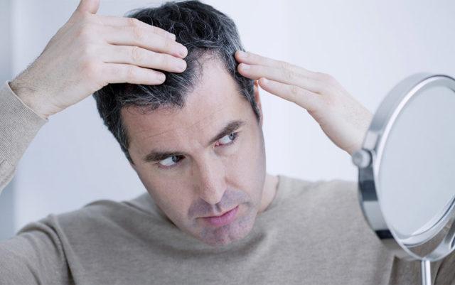 Homem preocupado com o cabelo