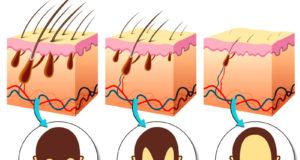 Fases da alopecia androgenética