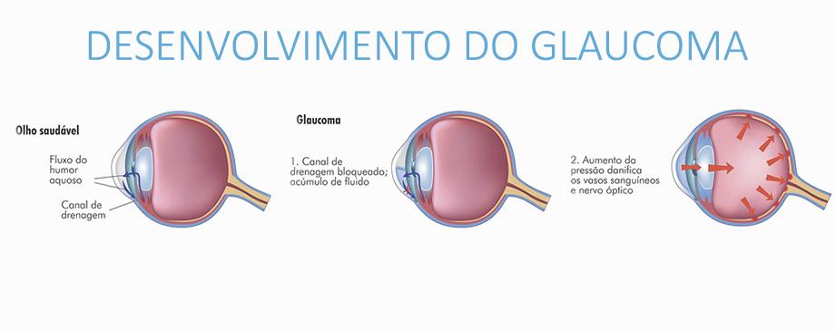 desenvolvimento-do-glaucoma