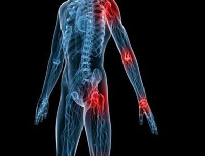 artrite-tratamento