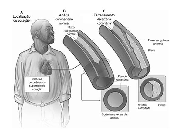 colesterol-estreitamento-da-artéria