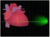 colesterol-saúde-do-coração