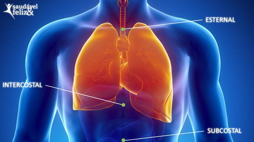 pneumonia-como-tratar