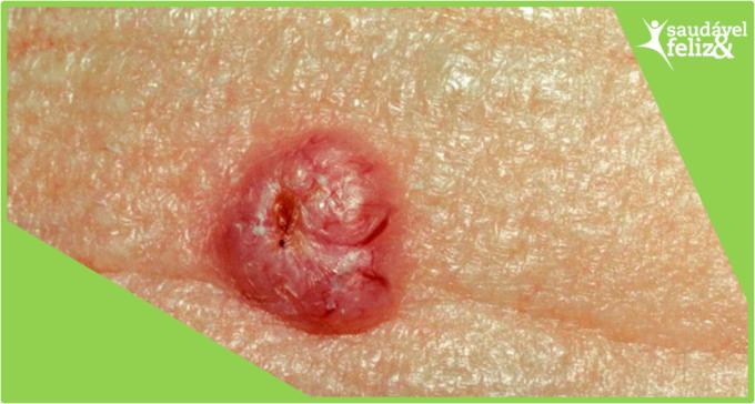 manchas-na-pele-na-menopausa-basalioma
