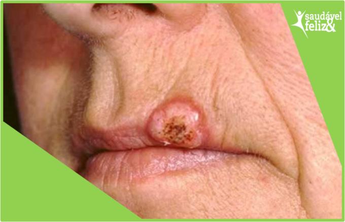 machas-na-pele-na-menopausa-carcionoma-espinocelular