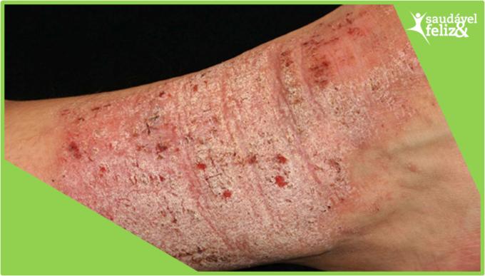 manchas-na-pele-na-menopausa-eczema