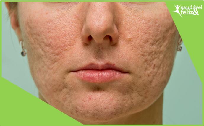 manchas-de-pele-na-menopausa-acnes