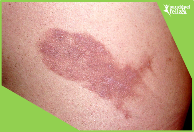manchas-na-pele-na-menopausa-mancha-fitofotodermatite