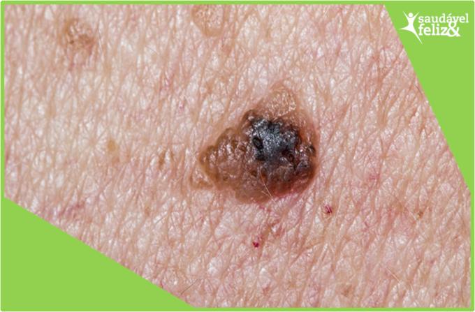 manchas-na-pele-na-menopausa-melanoma