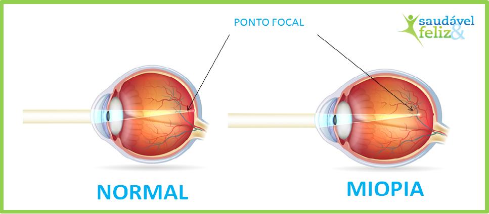 astigmatismo-e-a-miopia