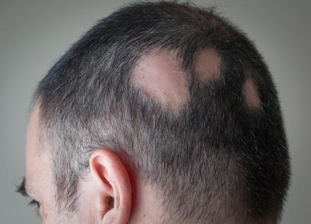 tipos-de-alopecias