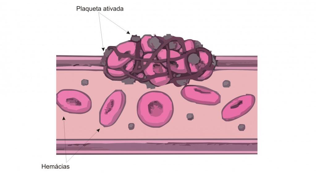 doenças-no-sangue-mais-comuns