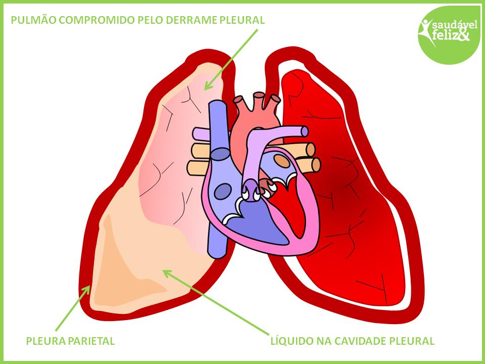 Água no pulmão