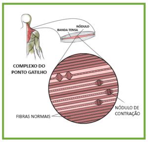 sindrome-miofascial