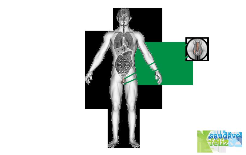 fibrose-peniana