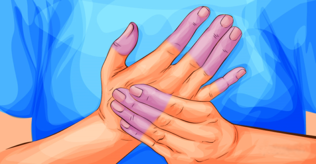 sindrome-de-raynaud