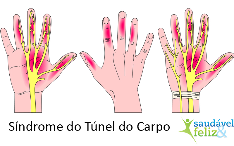 síndrome-tunel-do-carpo