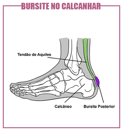 bursite no calcanhar