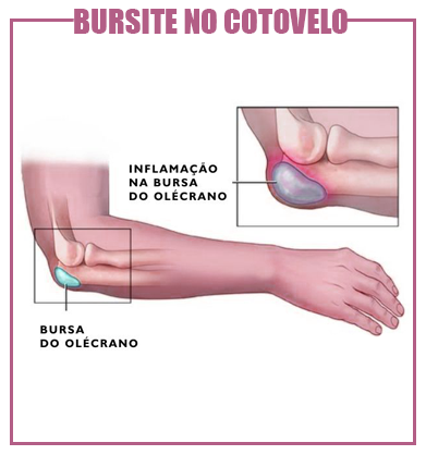 bursite no cotovelo