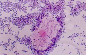 vaginose-bacteriana