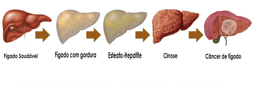 Estágios das complicações da gordura no fígado